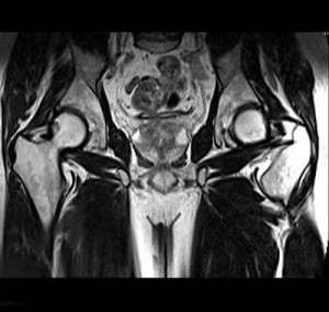 prostata_rubrik_mr3_400x378