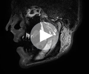 mandibula_video_tmb_300x250