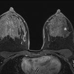 MR-Aufnahme BI 7: 51-jährige Patientin