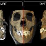MRT Untersuchung mit Mandibula 15-Kanal Dental Spule